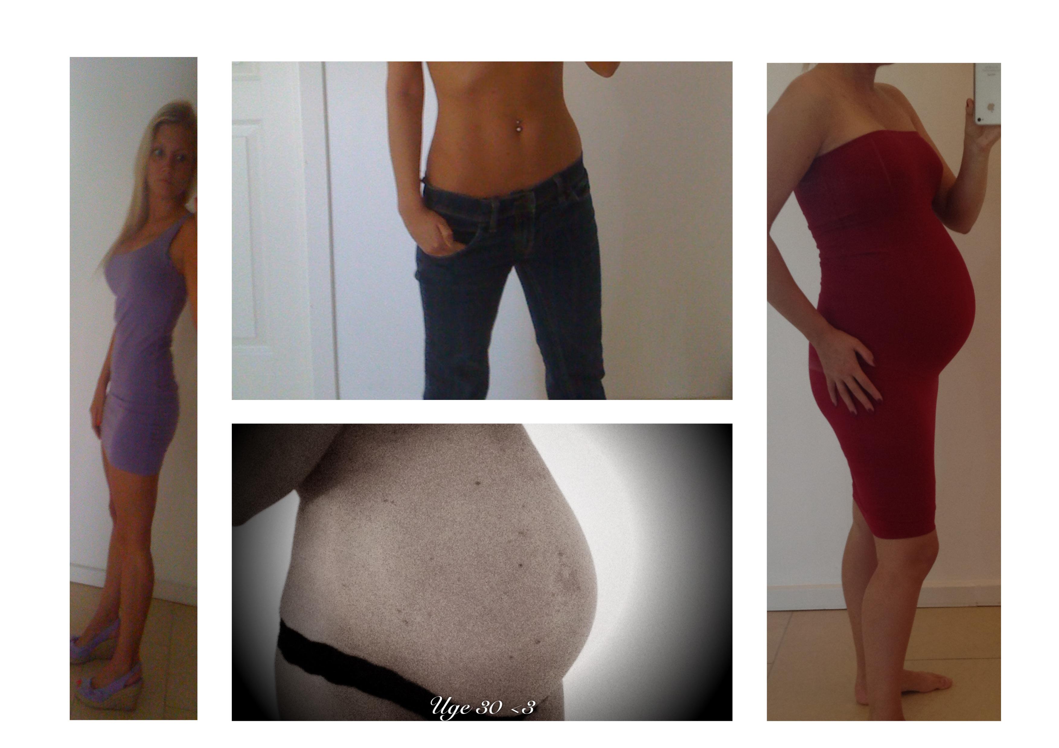 anatomiske implantater før og efter billeder tantra massage Fyn